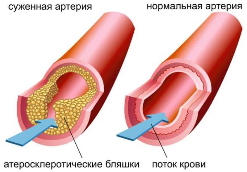hipertenzijos gydymas cinquefoil