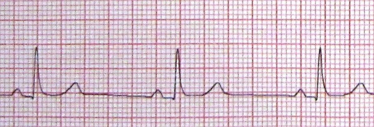 Ortostatinė hipotenzija (I 95.1)