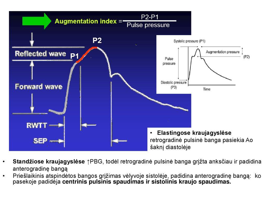 ginkoumas ir hipertenzija ankstyvoji hipertenzijos stadija