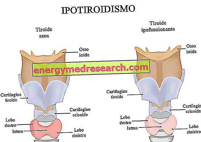hipertenzija ir hipotirozė