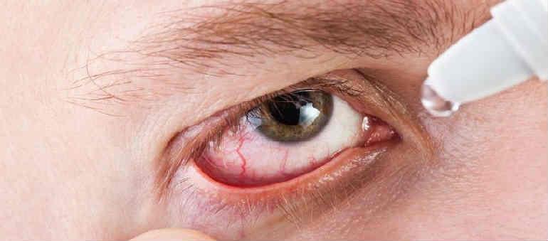 akies indų hipertenzija hipertenzija ir katarakta