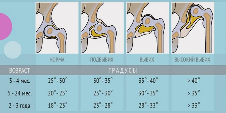 ką daryti, kai kojos išbrinksta nuo hipertenzijos