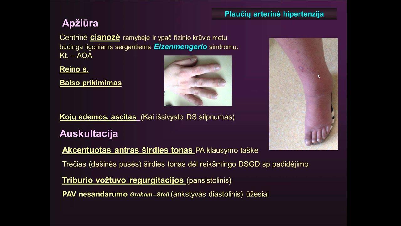 medicinos svetainėse apie hipertenziją su k