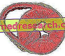mirties baimė hipertenzija Fiziotensinis hipertenzijos gydymas