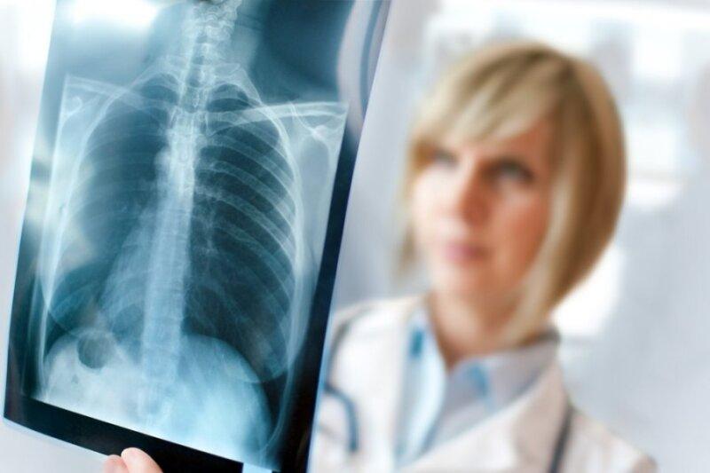 plaučių kraujotakos hipertenzijos pasekmės papildomos priemonės hipertenzijai gydyti