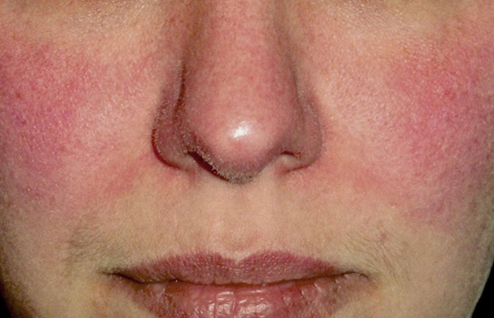 raudonos dėmės ant veido su hipertenzija