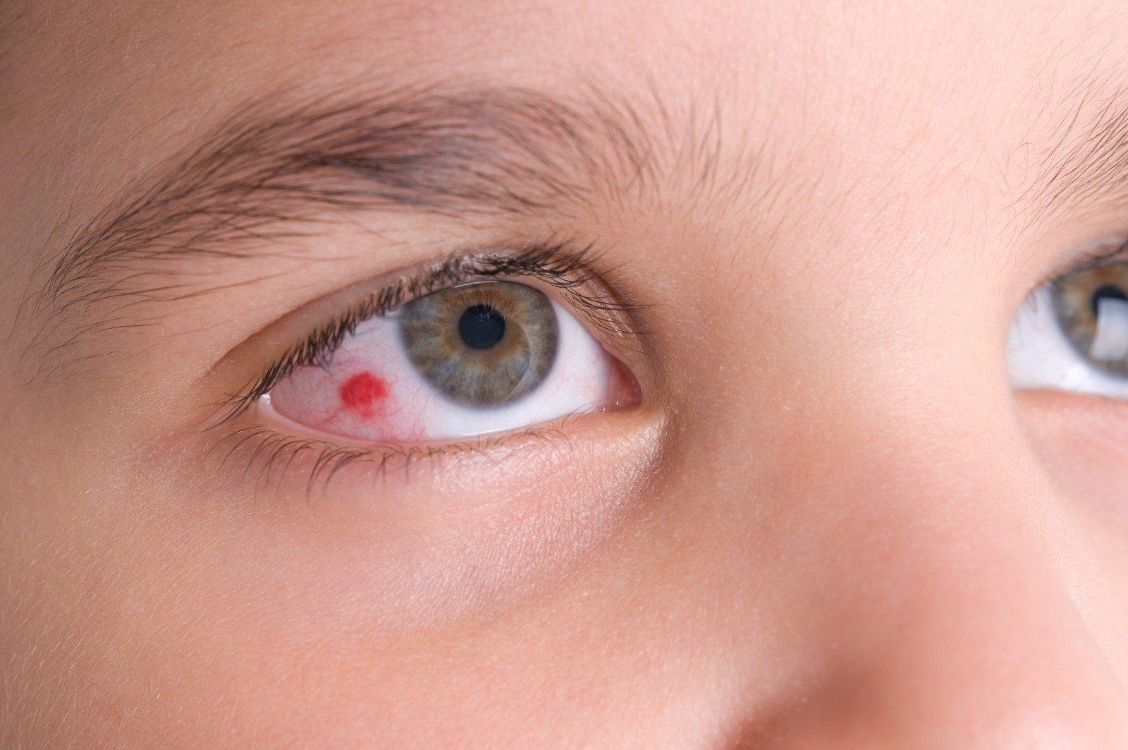 skauda akis hipertenzija hipertenzijos ir kompresiniai drabužiai
