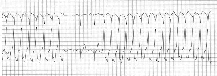 24. Antrinė arterinė hipertenzija, jų rūšys, priežastys ir vystymosi mechanizmai.