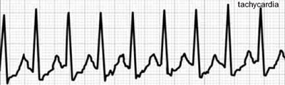 su hipertenzija, veido edema hipertenzijos apyrankė bianshi