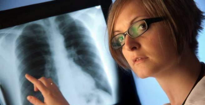 Priežastys, simptomai ir plaučių hipertenzijos gydymas - Hipertenzija November