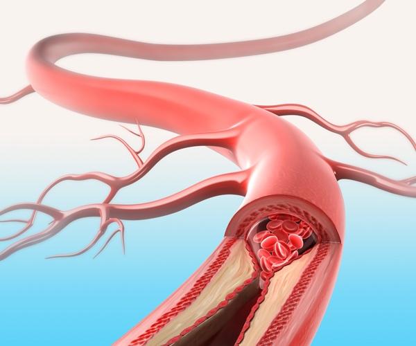 Kaip išvalyti širdies kraujagysles: 7 liaudies receptai - Hipertenzija