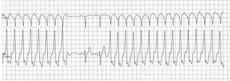 tachikardijos gydymas esant hipertenzijai