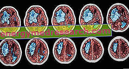 Kandesartanas – pažangus vaistas hipertenzijai gydyti   taksi-ag.lt