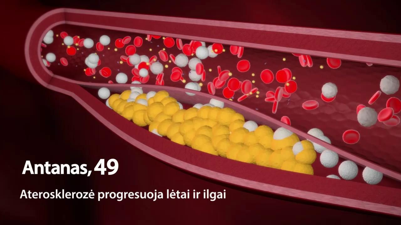ilgai trunkantis vaistas nuo hipertenzijos