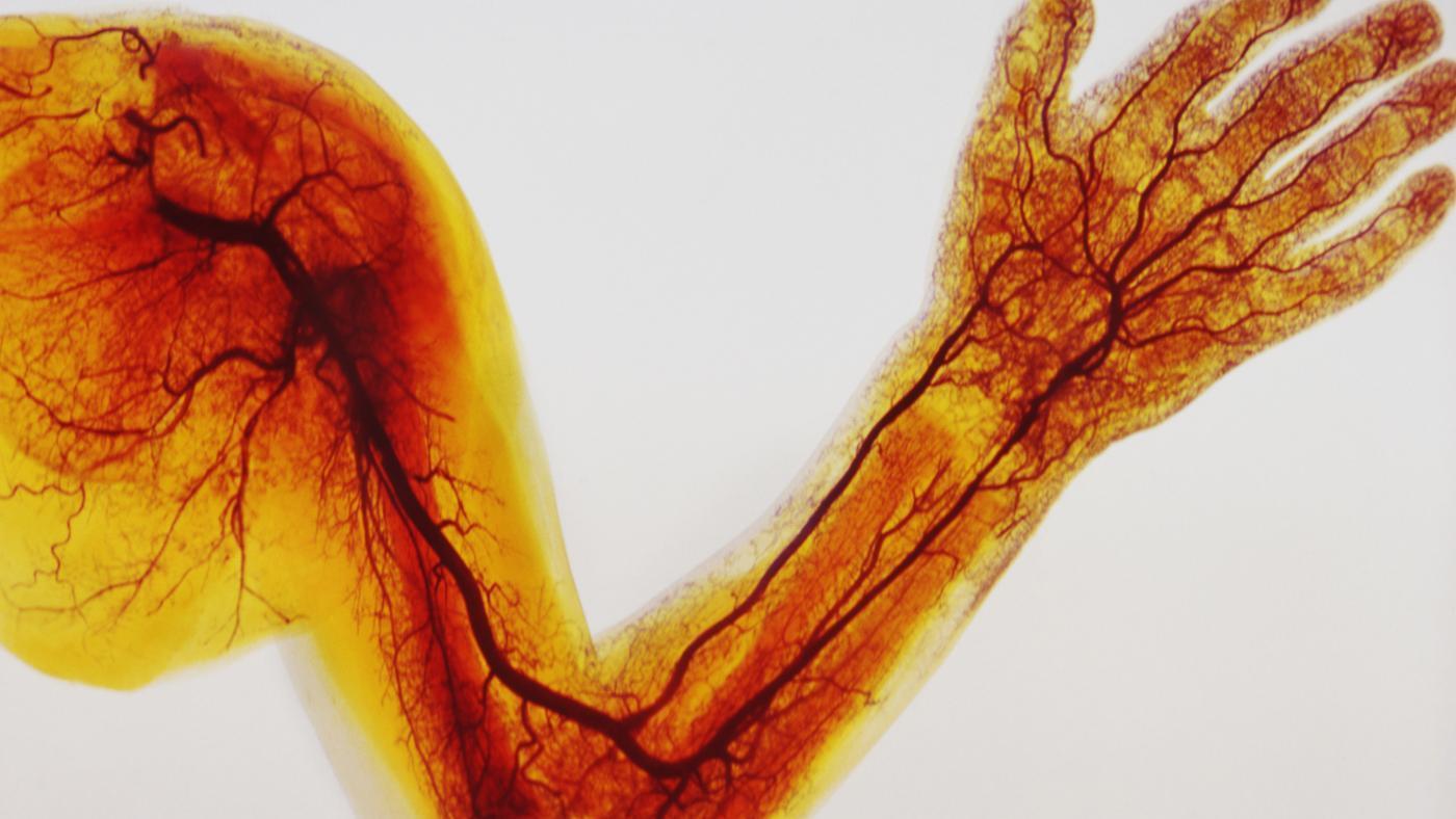 Medicina IRR: populiariausi vaistai - Aterosklerozė November