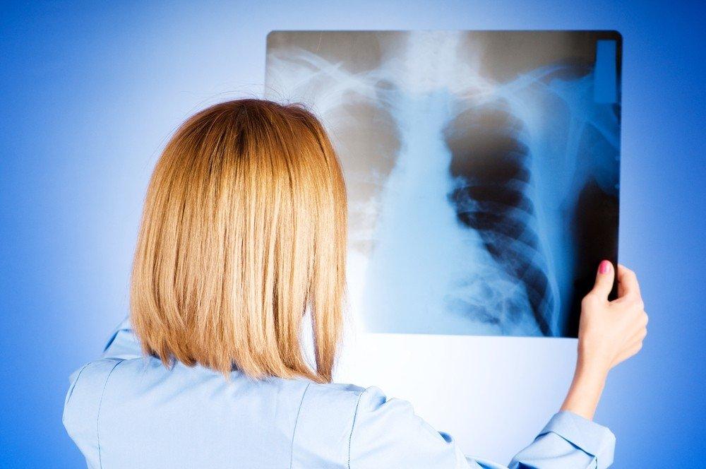 plaučių hipertenzija ir jos simptomai intramuskuliniai vaistai nuo hipertenzijos