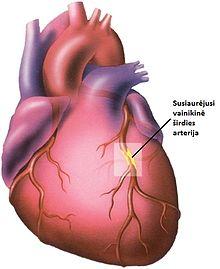 išeminė širdies liga hipertenzija hipertenzija sąnarių skausmas