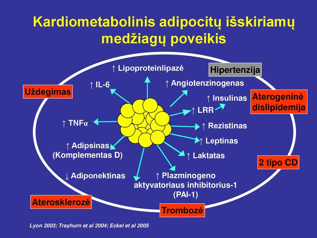 hipertenzija ir jos schema magnetoturbotrono hipertenzija