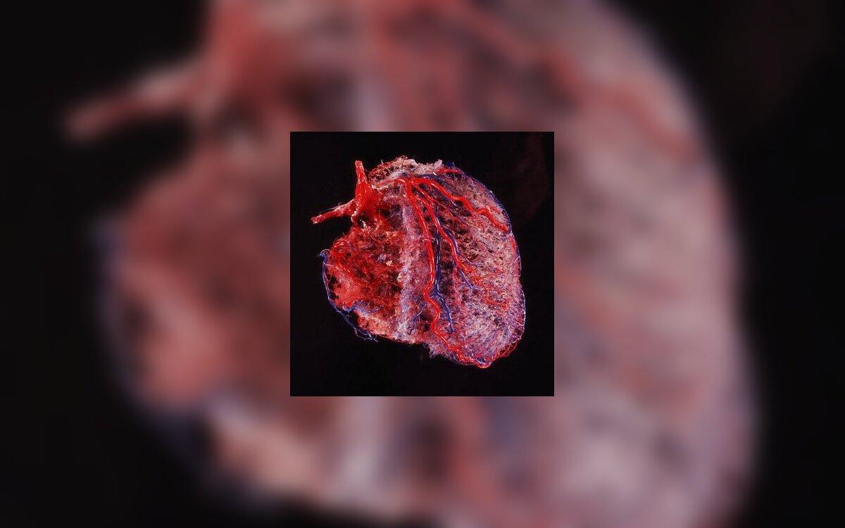 hipertenzijos širdies plakimo gydymas periferinių kraujagyslių pasipriešinimas esant hipertenzijai