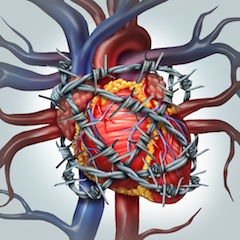 širdies miokardo hipertenzija