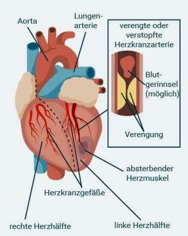 Širdies ritmo zonos