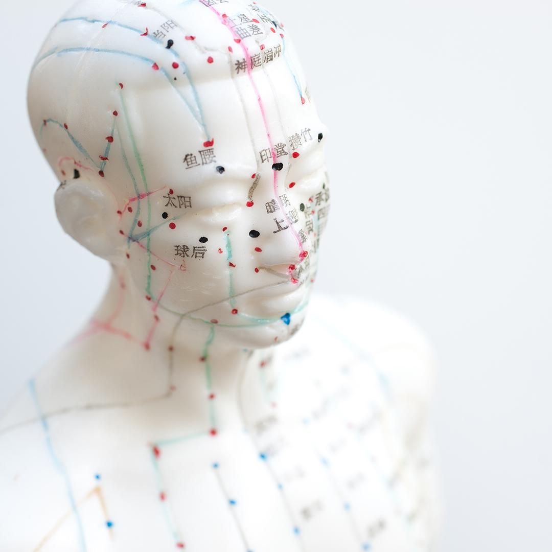 akupunktūra gydant hipertenziją