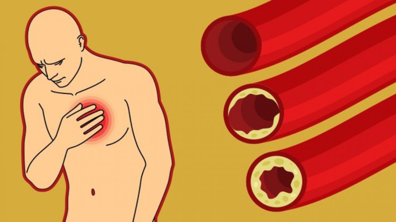 dietos hipertenzija 2 laipsniai druskos norma per dieną sergant hipertenzija