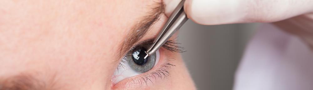 Glaukoma | Lirema