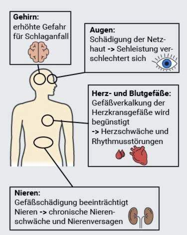 hipertenzija, kaip veikia cukrus