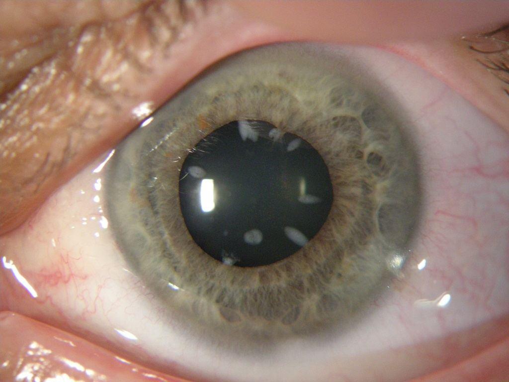 akių liga su hipertenzija kaip pašalinti hipertenziją