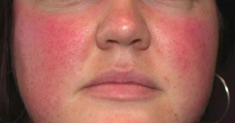 Raudonos dėmės ant nosies: kaip kovoti ir kaip pašalinti? - Simptomai - November