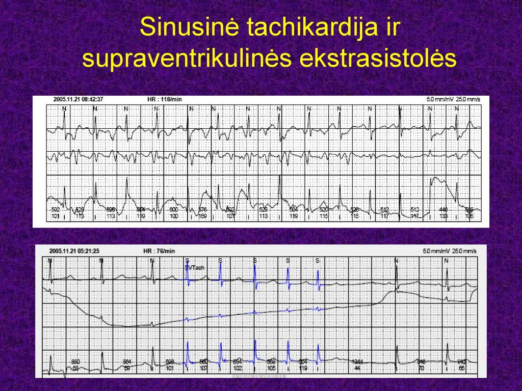hipertenzijos gydymo metodų patentas