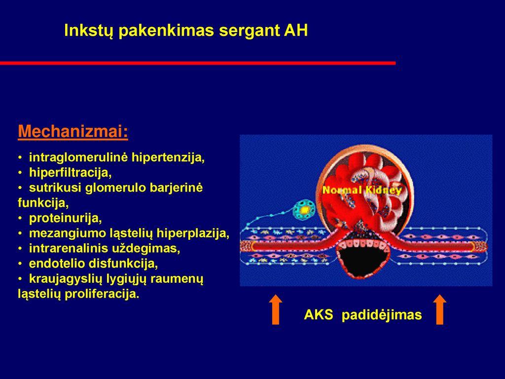 hipertenzija, kuri padės sergant hipertenzija