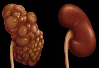 hipertenzija ir karštos vonios magnis hipertenzijos kardiologui