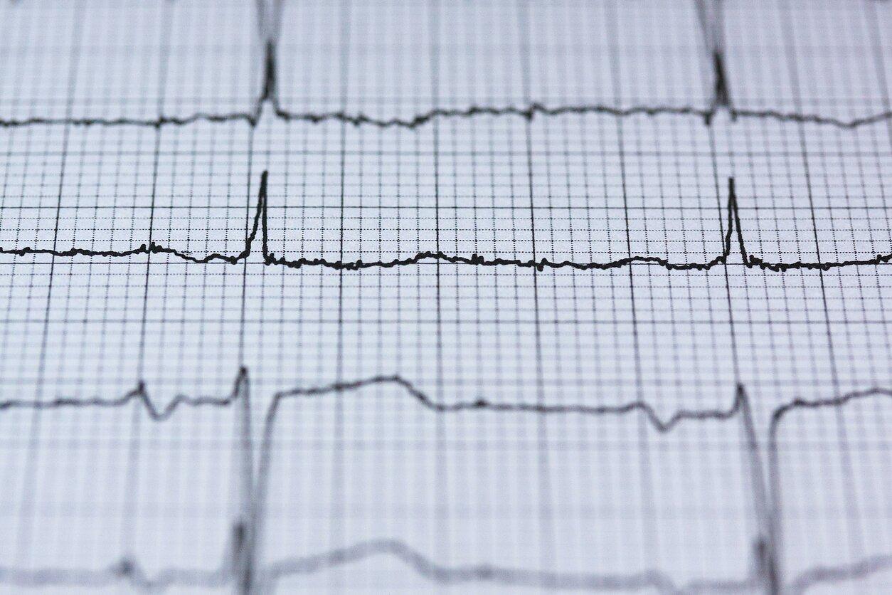 Ką apie žmogaus sveikatą sako širdies pulsas ir kaip jį teisingai pamatuoti namų sąlygomis