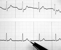 hipertenzija. tradiciniai hipertenzijos gydymo būdai senatvėje hipertenzijos ir anemijos ryšys