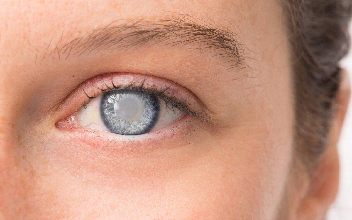 skauda akis hipertenzija beta adrenoblokatorių gydymas hipertenzija