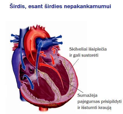 Kas yra širdies nepakankamumas?
