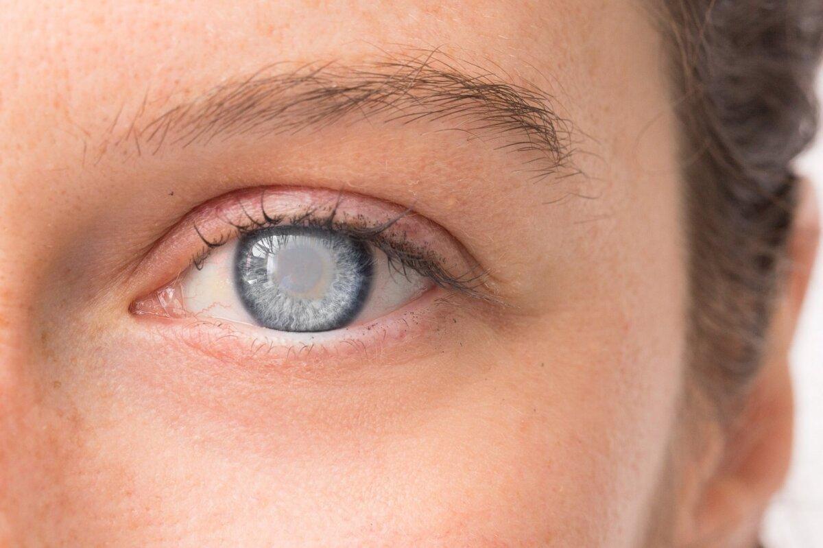 Du žvilgsniai į glaukomą: – gydytojo patirtis (I) - taksi-ag.lt